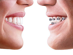 Invisalign® vs. brackets